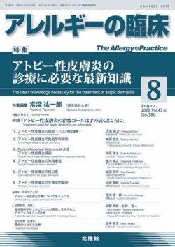 アレルギーの臨床 表紙